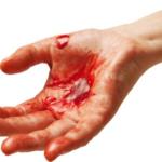 3 Ways to Stop Excessive Bleeding